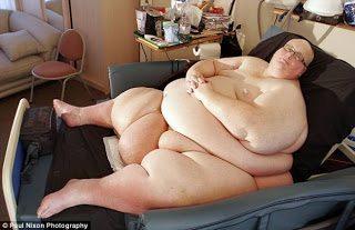 Ήταν 444 κιλά και αδυνάτισε
