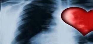 Αυτό είναι το φάρμακο που προλαμβάνει τον καρκίνο και τις καρδιοπάθειες σύμφωνα με γνωστό γιατρό