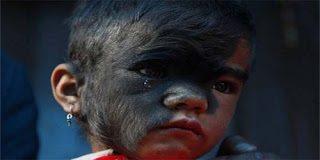 Η ιστορία της 9χρονης από το Νεπάλ που πάσχει από το σύνδρομο του λύκου