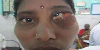 Απίστευτο! Δείτε τι υπήρχε μέσα στο μάτι της για 23 χρόνια