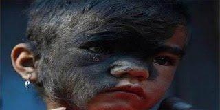 Έτσι είναι σήμερα το κοριτσάκι από το Νεπάλ που έπασχε από το σύνδρομο του Λύκου