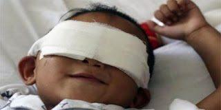Γιατρός προσφέρθηκε να κάνει εμφύτευση ματιών στο αγοράκι από την Κίνα