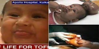 Μωρό υποβλήθηκε σε εγχείριση για να του αφαιρεθεί το δεύτερο του κεφάλι