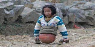 Η ιστορία της 4χρονης που δεν έχει αφήσει κανέναν ασυγκίνητο – Έχασε τα πόδια της και...