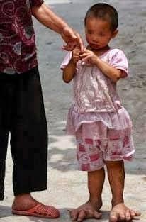 Η Yu Yu ένα 3χρονο κοριτσάκι με πόδια γίγαντα