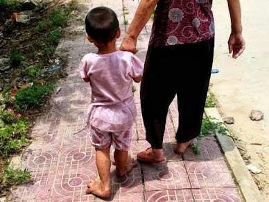 Η Yu Yu ένα 3χρονο κοριτσάκι με πόδια γίγαντα 2