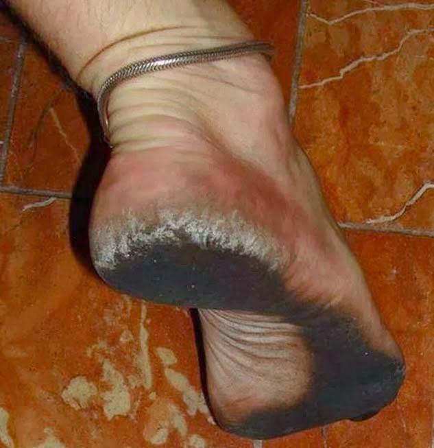 πόδια χωρίς παπούτσια