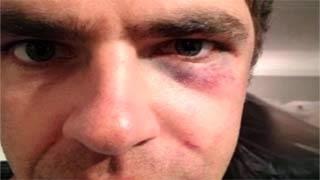 Η αστυνομία έδειρε κωφάλαλο άντρα επειδή επικοινωνούσε με την νοηματική  - video