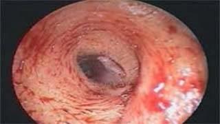 Απίστευτο: Γιατροί εντόπισαν μέσα στο αυτί της…