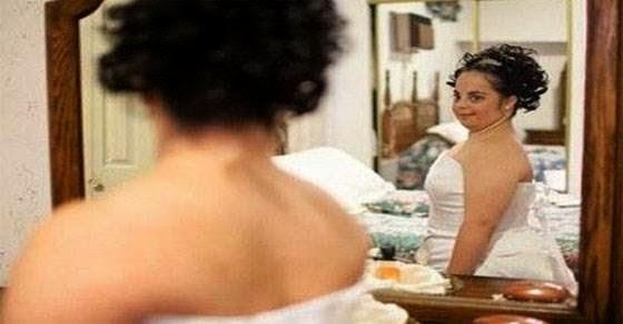 Συγκινητικός γάμος: 25χρονη με σύνδρομο DOWN παντρεύεται